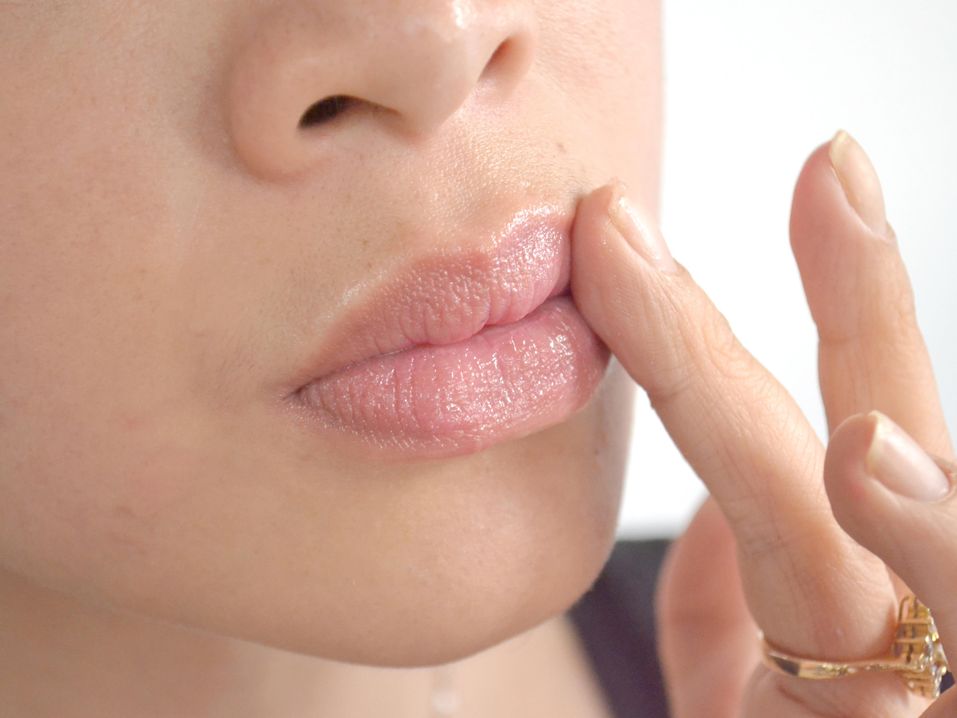 Comment traiter les lèvres gercées et craquelées?